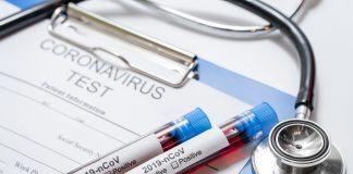 Testy koronawirusa. Foto: Freepik
